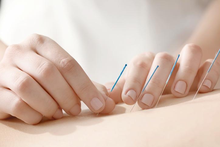Agopuntura e fertilità